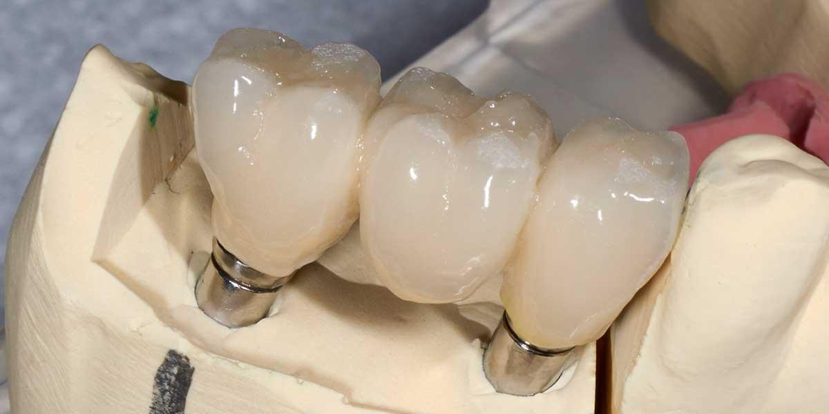 Dental Implant Supported Bridges in OKC