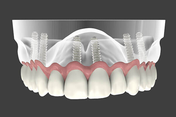 Implant Supported Dentures in Oklahoma