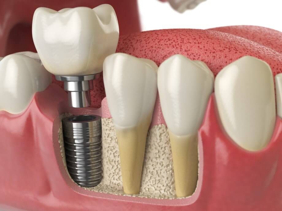 Choose OMA for Dental Implants