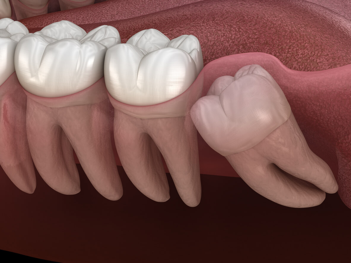 Are Your Wisdom Teeth Keeping You Awake At Night Oral Maxillofacial Associates