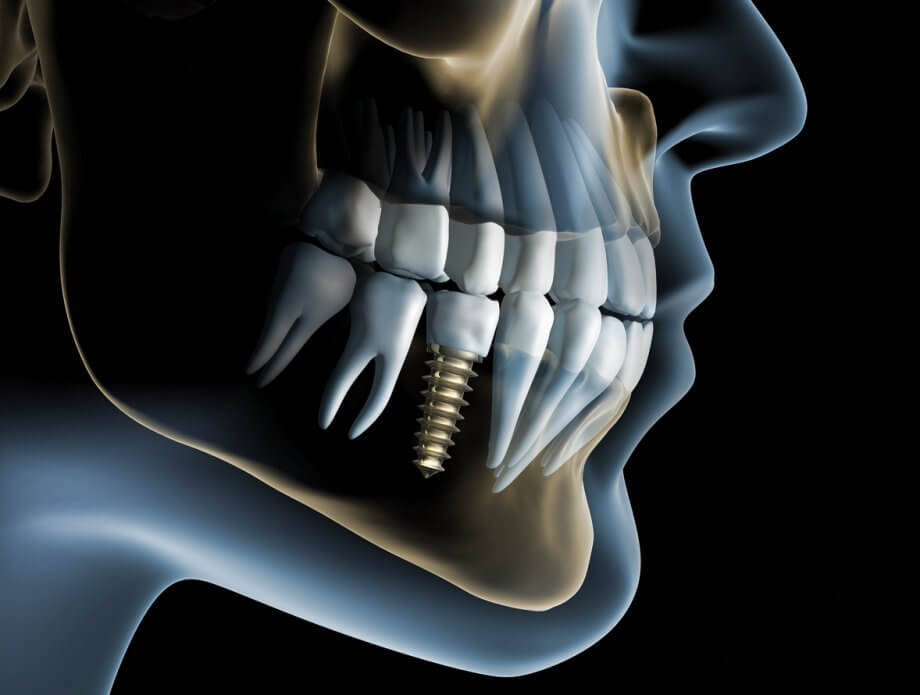 Dental Implants and Bone Loss