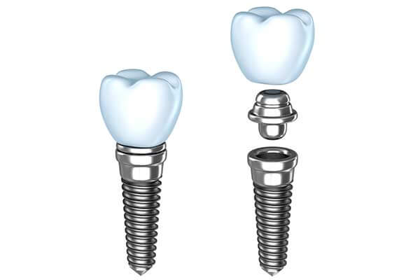 Single Tooth Dental Implants in Oklahoma